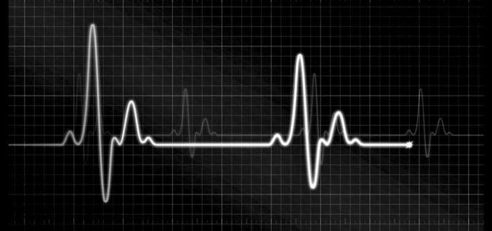EKG Sounds